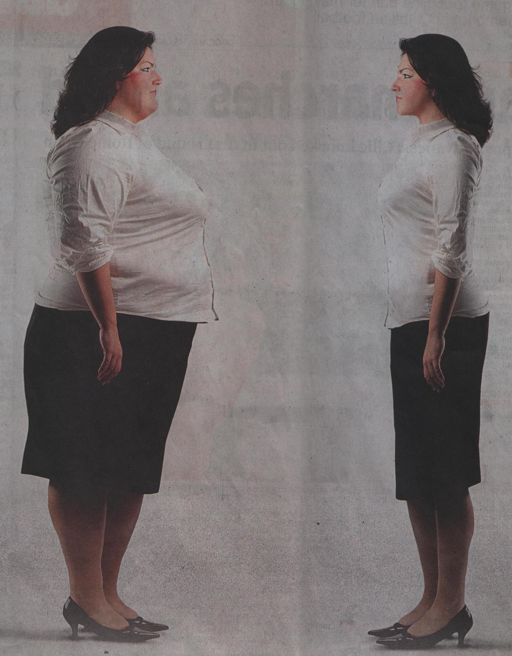 Before and After Obesity Laparoscopic surgeries for Weight loss