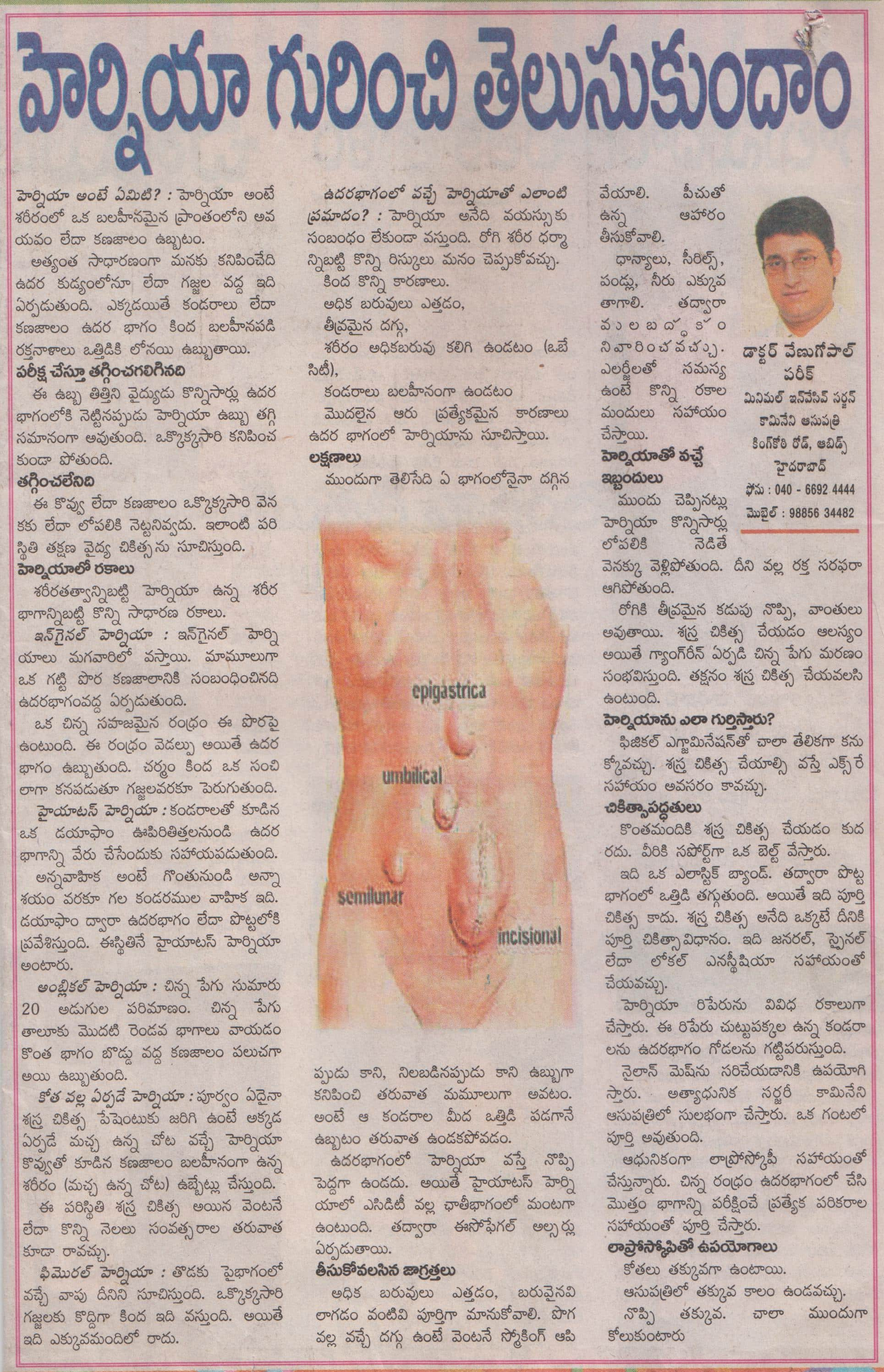 What you should know about Hernia and Treatment: explained by Dr Venugopal Pareek, Best hernia specialist in Hyderabad