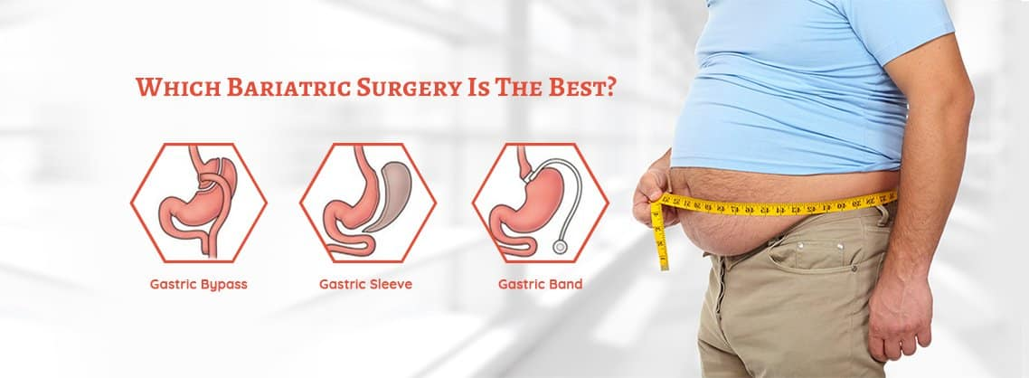 Bariatricsurgeon Slider1