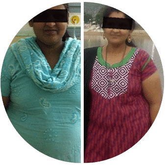 Before and after bariatric surgery in Hyderabad by Dr V Pareek, Best Bariatric Surgeon in Hyderabad.