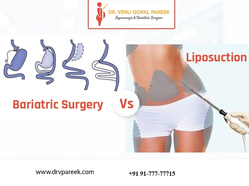 Consult Dr. Venugopal Pareek for Choose the best weight loss surgery, One of the best Bariatric surgery specialists in Hyderabad