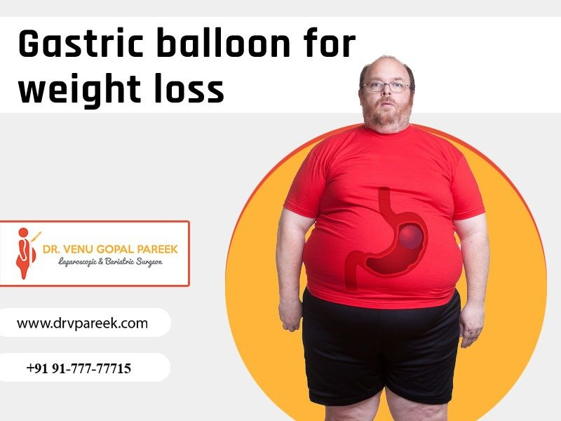 Best Gastric balloon for weight loss surgery Clinic in Hyderabad, Bariatric surgery hospital near me