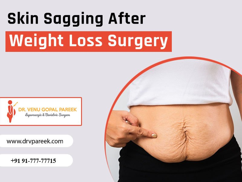 Best ways to Manage Loose Skin After Weight Loss Surgery at Bariatric surgeon India, One of the best Bariatric Surgery Hospitals in Hyderabad