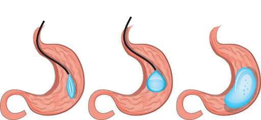 Beat Gastric balloon weight loss treatment in Hyderabad, best weight loss surgery doctors near me