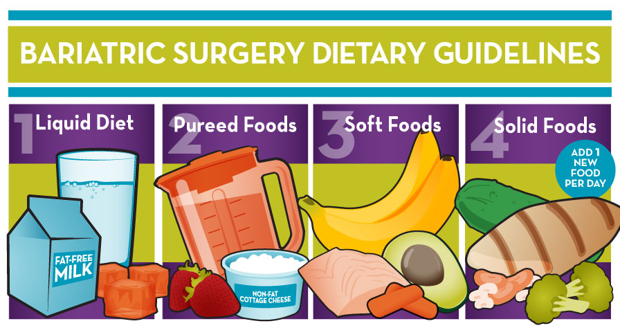 Contact Dr. Venugopal Pareek to know the best diet plan after mini-gastric bypass surgery, obesity specialist near me