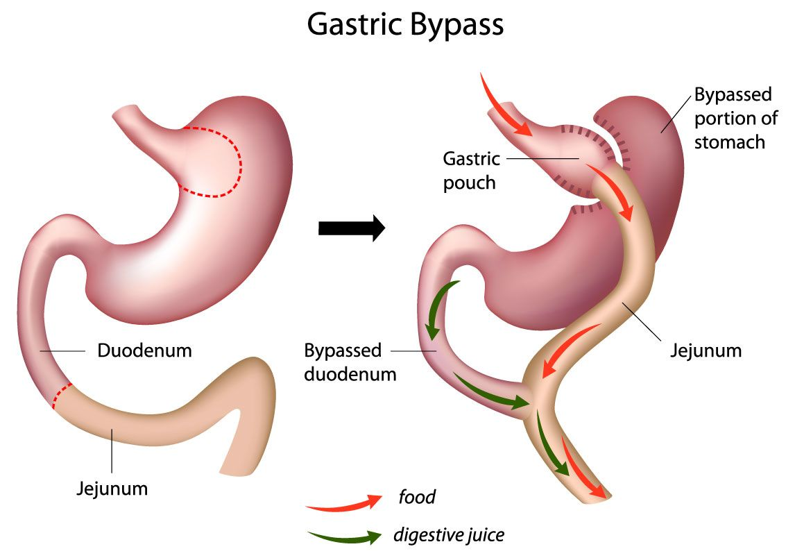 Best Gastric bypass surgery for weight loss by Dr. Venugopal Pareek, One of the best Bariatric Surgeons in Hyderabad