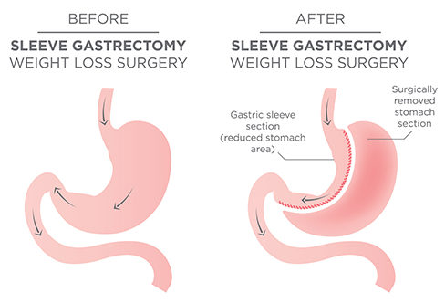 long-term results of laparoscopic sleeve gastrectomy for obesity at Bariatric surgeon India clinic, One of the best weight loss surgery Clinics in Hyderabad