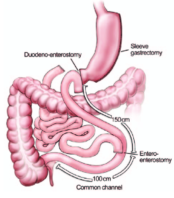 Biliopancreatic diversion with duodenal switch for weight loss surgery center in Hyderabad, slimming clinic near me