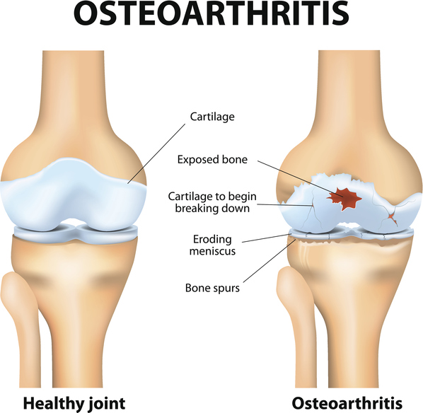 Overweight harm your knees with osteoarthritis and its treatment at a Bariatric surgeon India