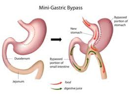 Best Mini Gastric bypass surgery for weight loss in Hyderabad, Bariatric medical center near me
