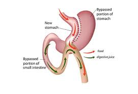 Best Mini gastric bypass surgery for weight loss hospital in Hyderabad, best obesity doctor near me