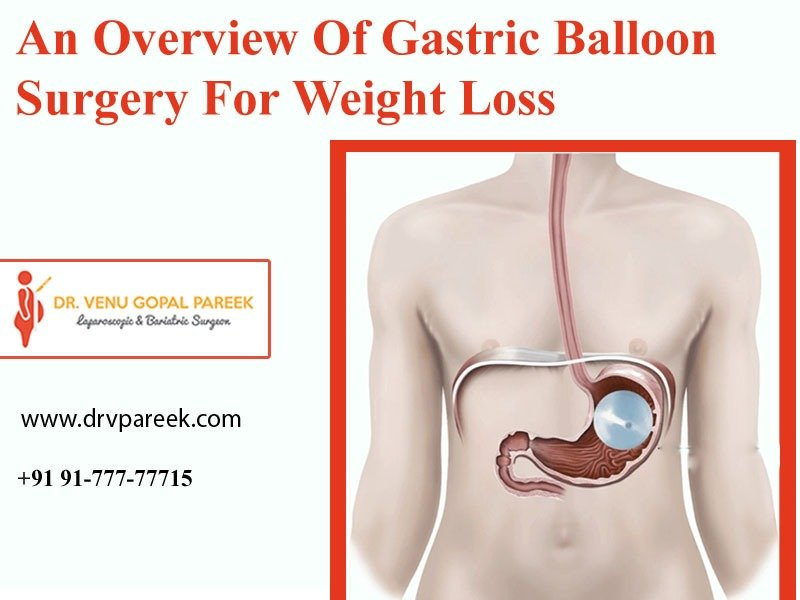 Best gastric balloon weight loss surgery Centre in Hyderabad, bariatric specialist near me
