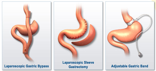 All types Baritric surgeries done at Bariatric surgeon India, best laparoscopic weight lose surgery centers in Hyderabad