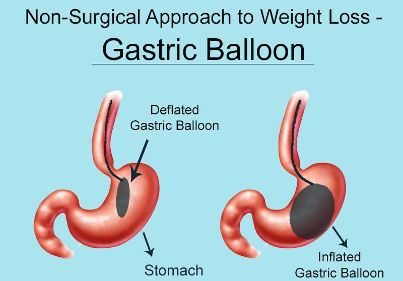 Non-surgical weight-loss treatment by Gastric balloon in Hyderabad, weight loss balloon surgery clinic near me