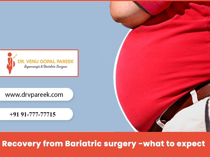 Meet Dr Venugopal Pareek to know recovery time of Bariatric surgery, One of the best Laparoscopic surgery doctors in Hyderabad