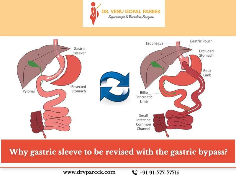 Gastric bypass surgery for weight reduction in Hyderabad, weight loss treatment near me
