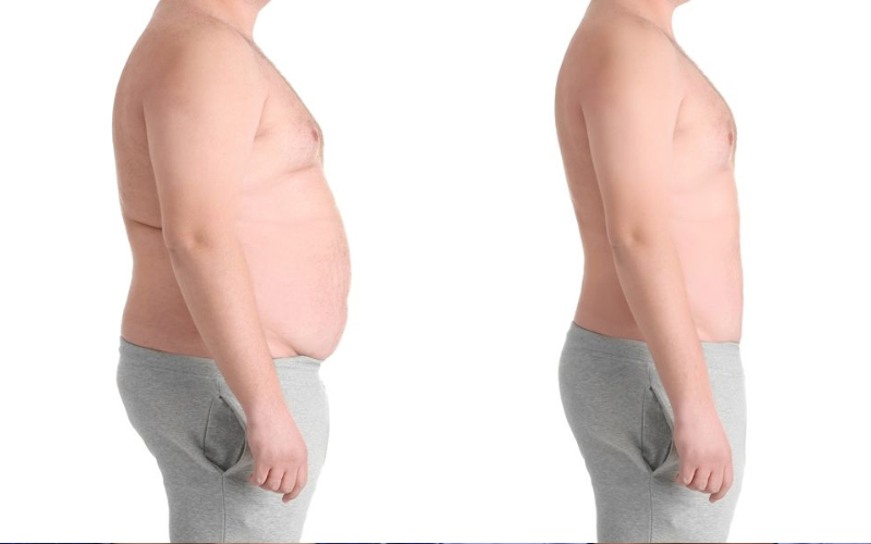 100 Percent result-oriented Bariatric surgery in Hyderabad, weight loss surgery specialists near me