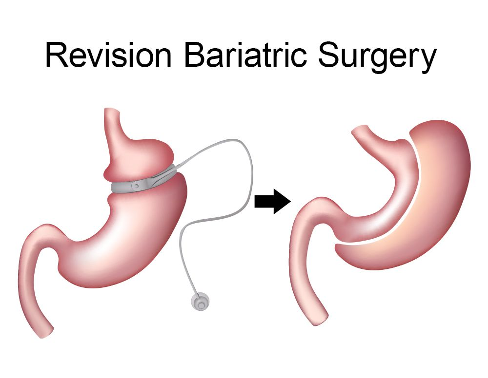 Best weight loss revision surgery center in Hyderabad, weight loss revision surgery doctor near me